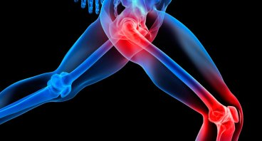 Homoeopathy For Joint Pain