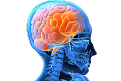 KNOW MORE ABOUT THE INFLAMMATION OF THE BRAIN
