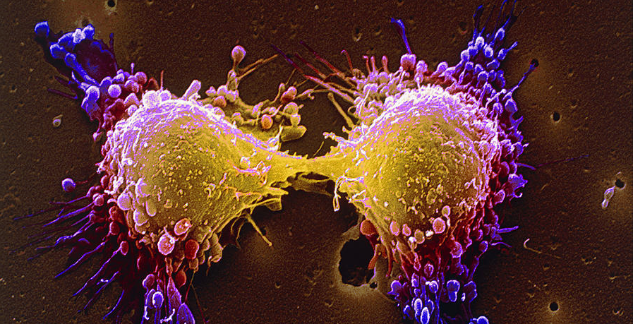 Australia approves the drug which melts Cancer cells