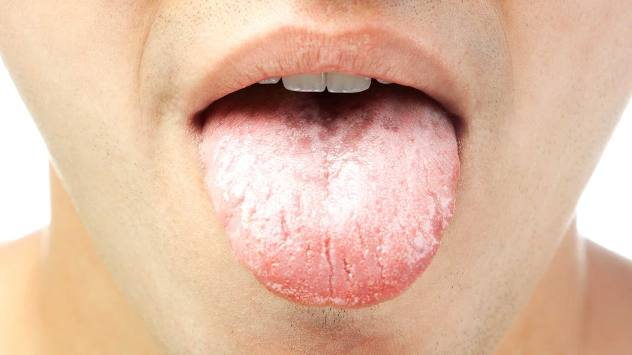 Oral Thrush: Causes and Symptoms