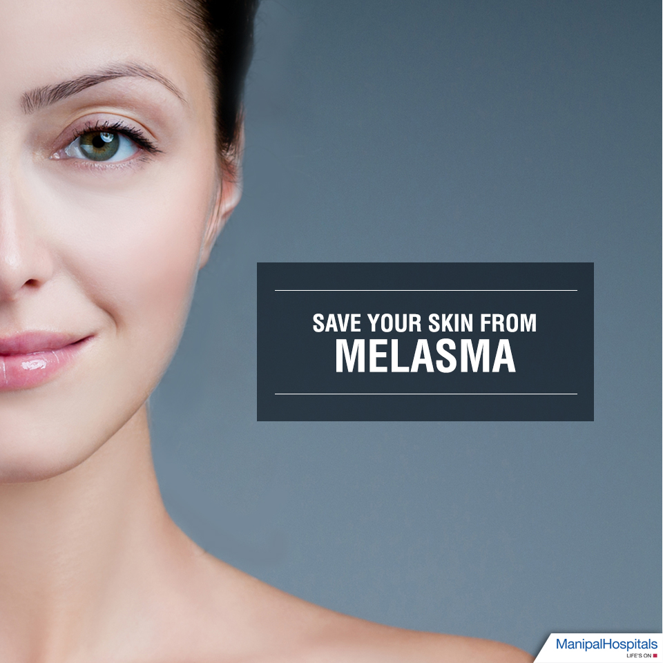 Save your skin from Melasma