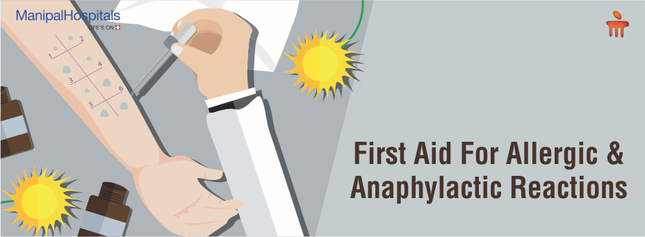 First Aid For Allergic And Anaphylactic Reactions