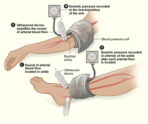 DIAGNOSIS OF PERIPHERAL ARTERY DISEASE