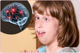 A possible treatment for Rett syndrome