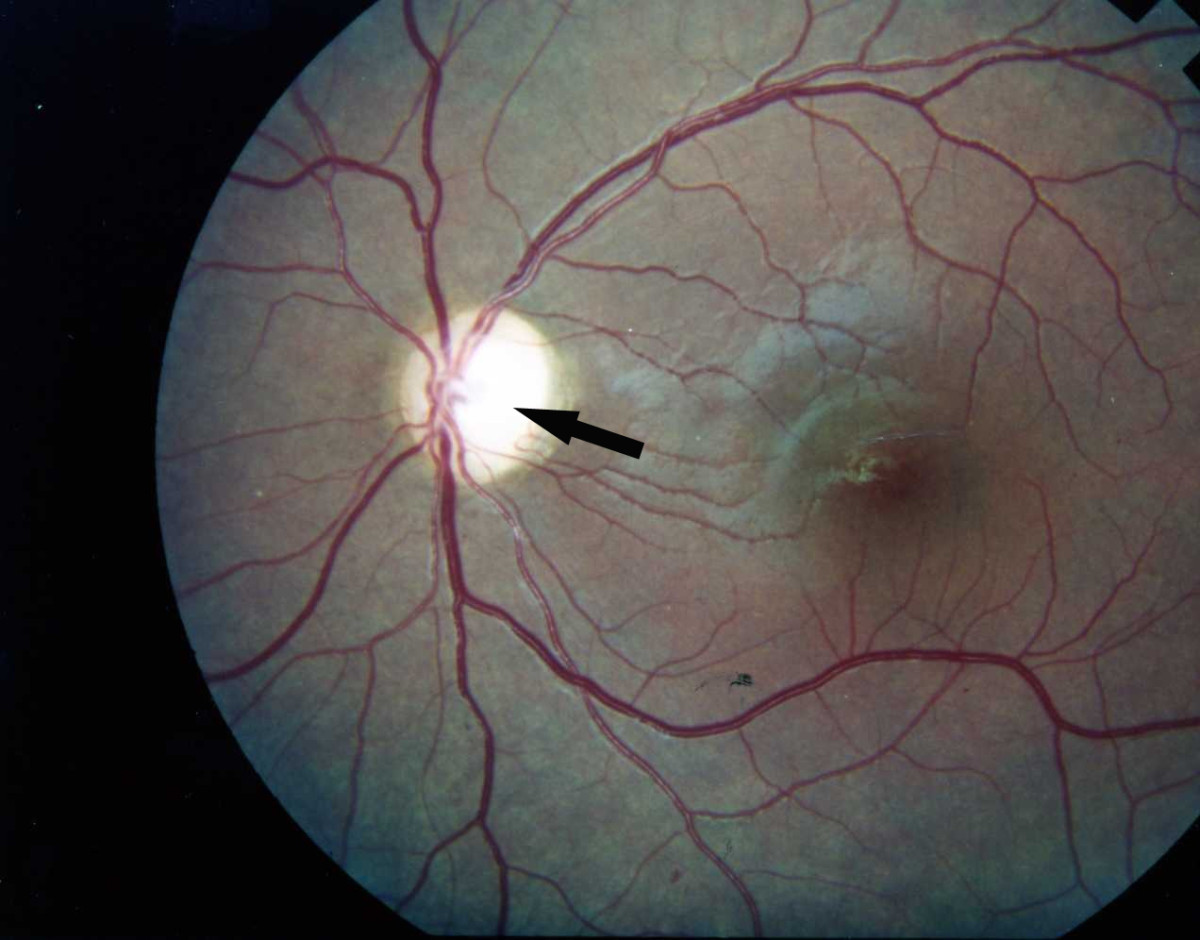 All you need to know about Diabetic retinopathy