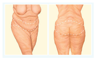 BODY LIFT (Tummytuck & Buttock Lift)