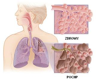 Diagnosis and Treatment of COPD