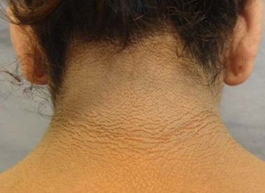 Acanthosis Nigricans: Symptoms and Causes