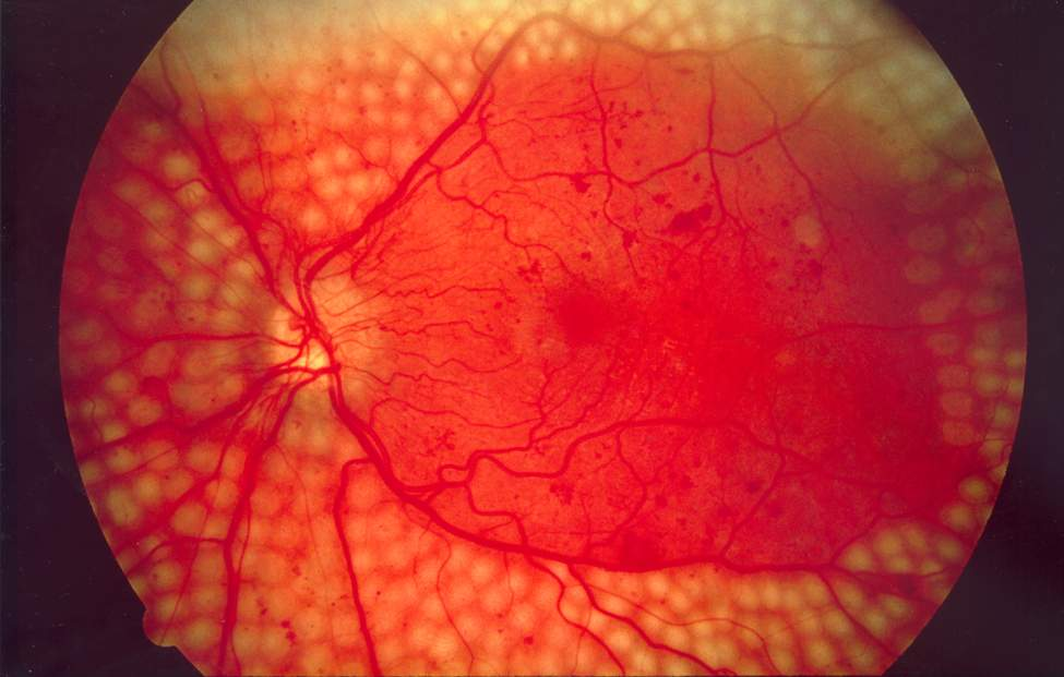 Diabetic Retinopathy causes and treatment