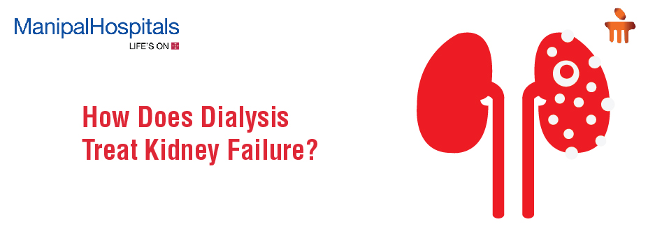 How Does Dialysis Treat Kidney Failure?