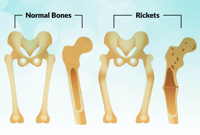 What are the causes of Rickets?
