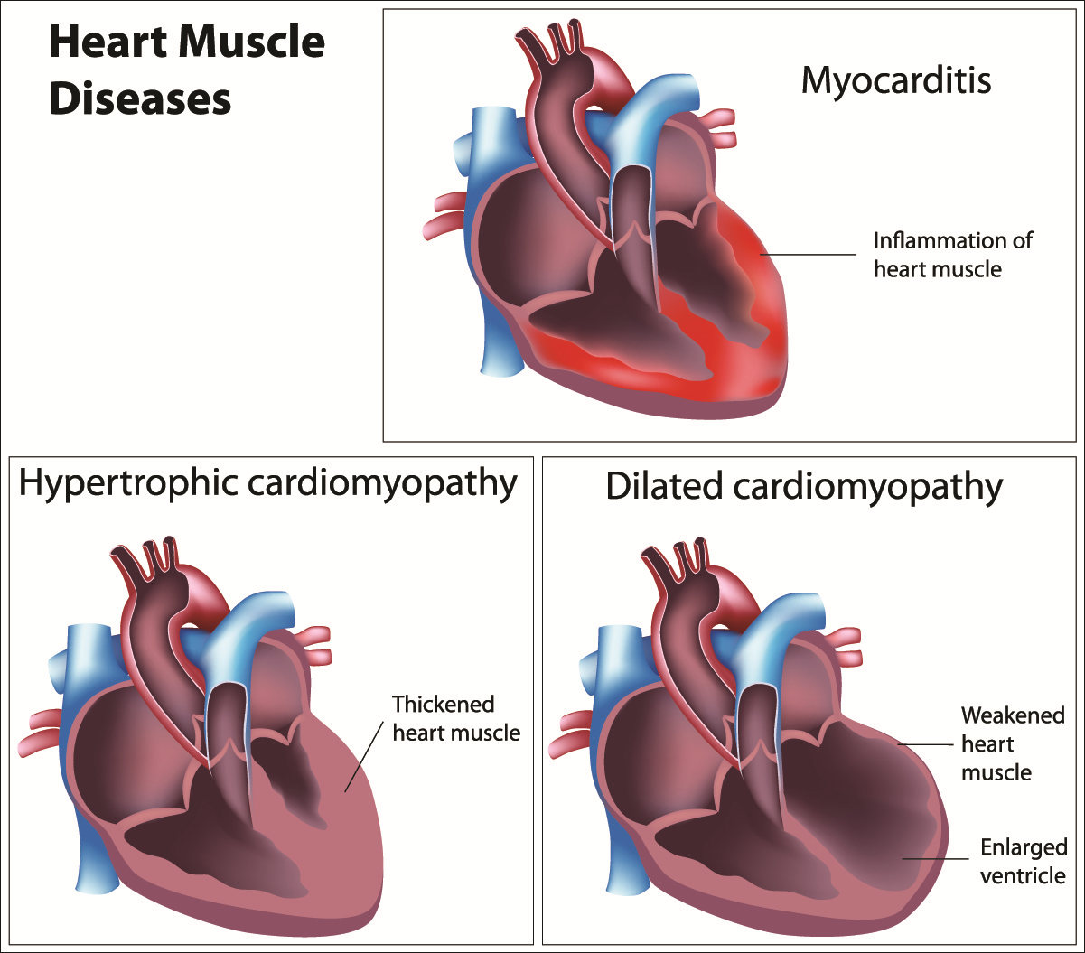 CARDIOMYOPATHY-diseases of the heart muscle
