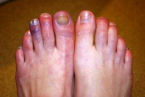 Chilblains: The winter swelling condition