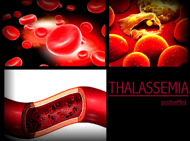 WHAT IS THALASSEMIA DISORDER?