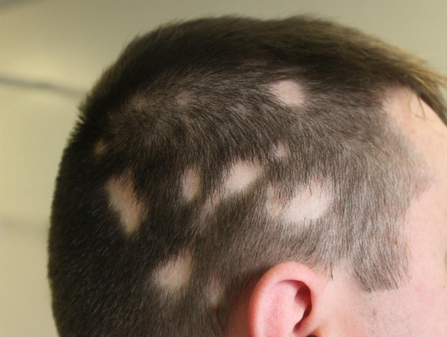 What are the Early Signs of Alopecia Areata?