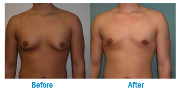 GYNECOMASTIA-MALE BREAST REDUCTION
