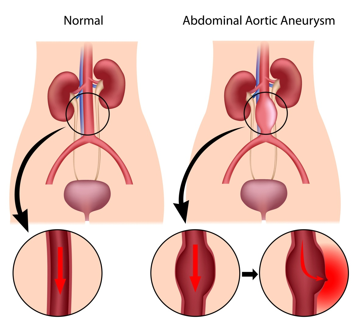 What is ABDOMINAL AORTIC ANEURYSM?