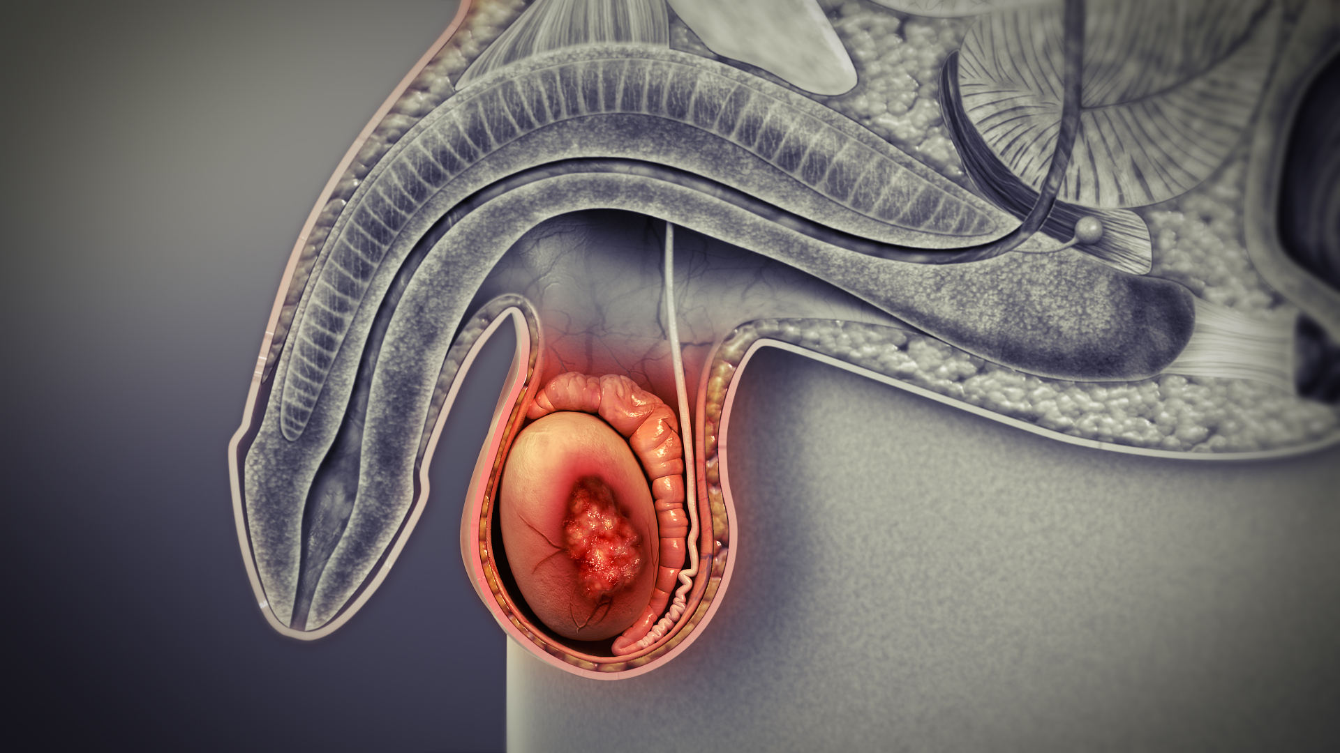 What are the Early Signs of Testicular Cancer?