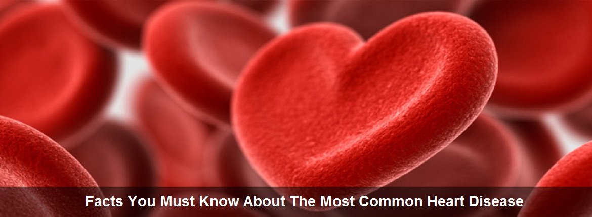 Facts You Must Know About The Most Common Heart Disease