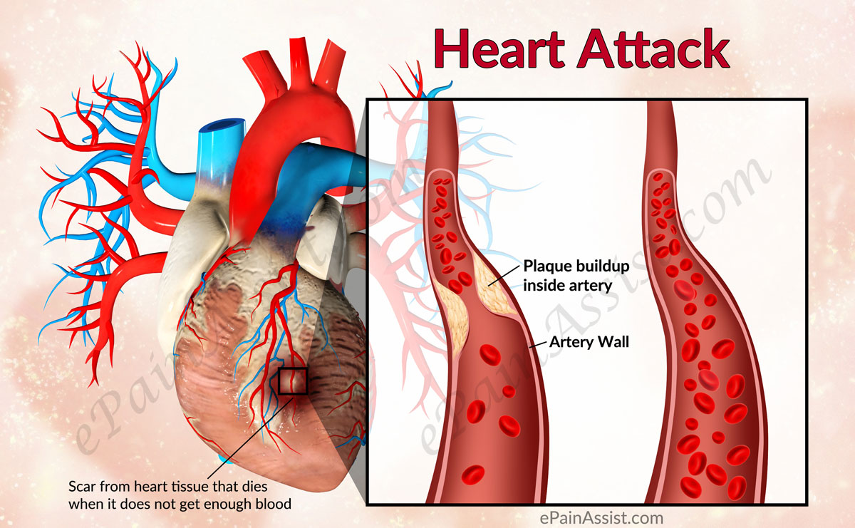 Treatment And Medication Of Myocardial Infarction Heart Attack