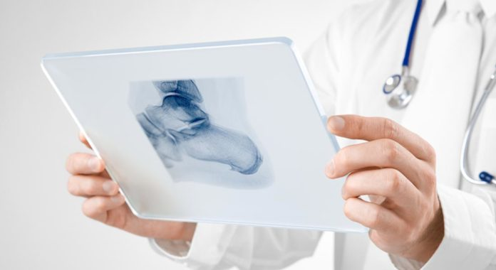 Heel Spur: Causes, Symptoms And Treatments You Can Do at Home