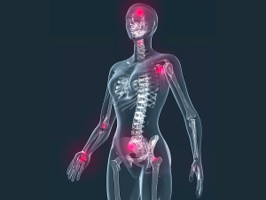 Physiotherapy and Fibromyalgia