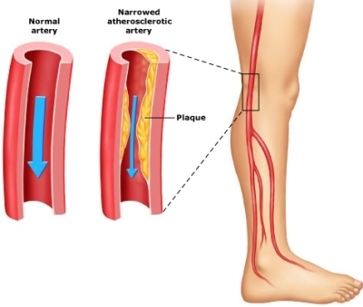 SYMPTOMS OF PERIPHERAL ARTERY DISEASE