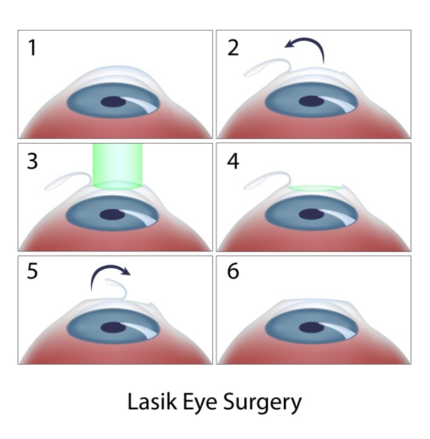 Refractive- Lasik Surgery -What is it?