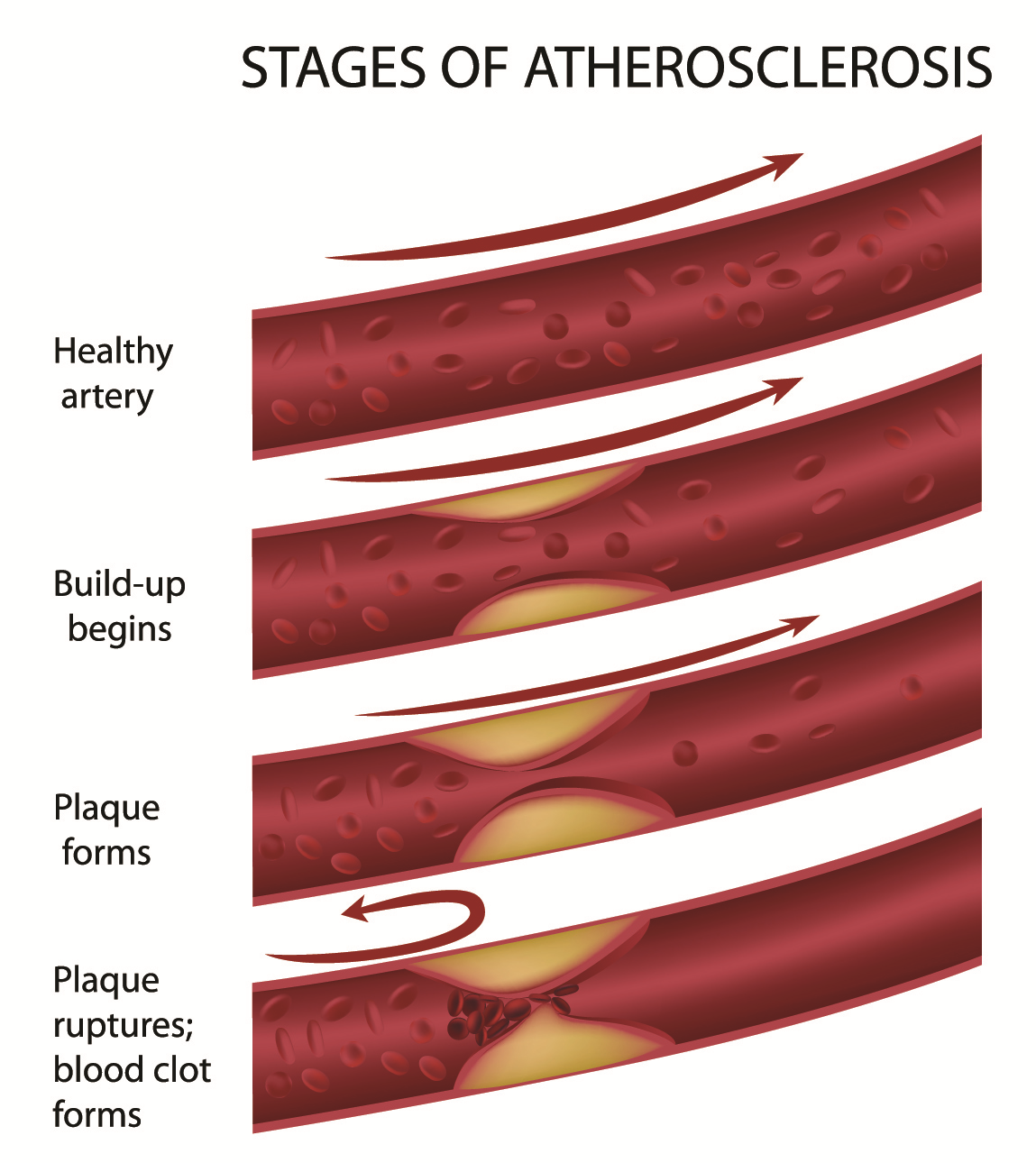What is atherosclerosis 25
