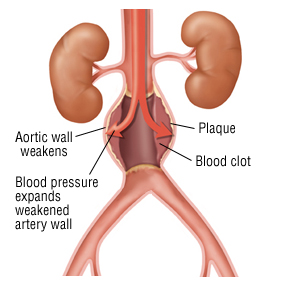Complications of abdominal aortic aneurysm