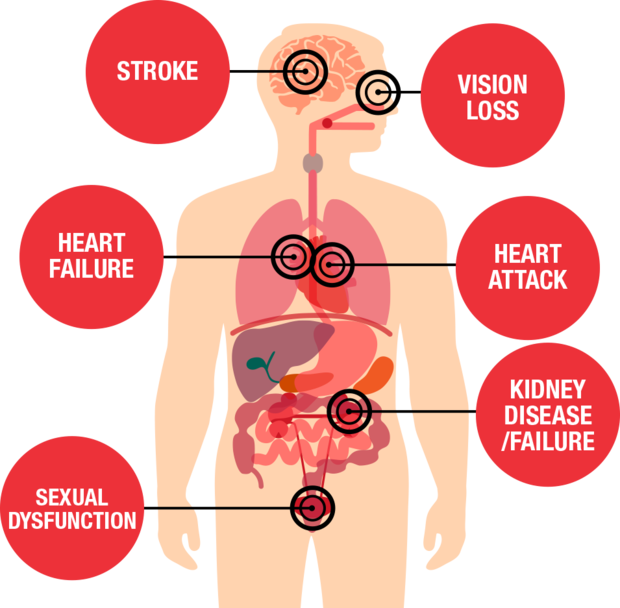 Complications of Hypertension, or high blood pressure