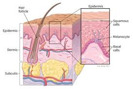 Learn how Basal Cell Carcinoma affects your skin
