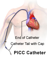 What is Peripherally Inserted Central Catheter or PICC?
