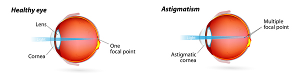 Do you have a blurred vision-Astigmatism