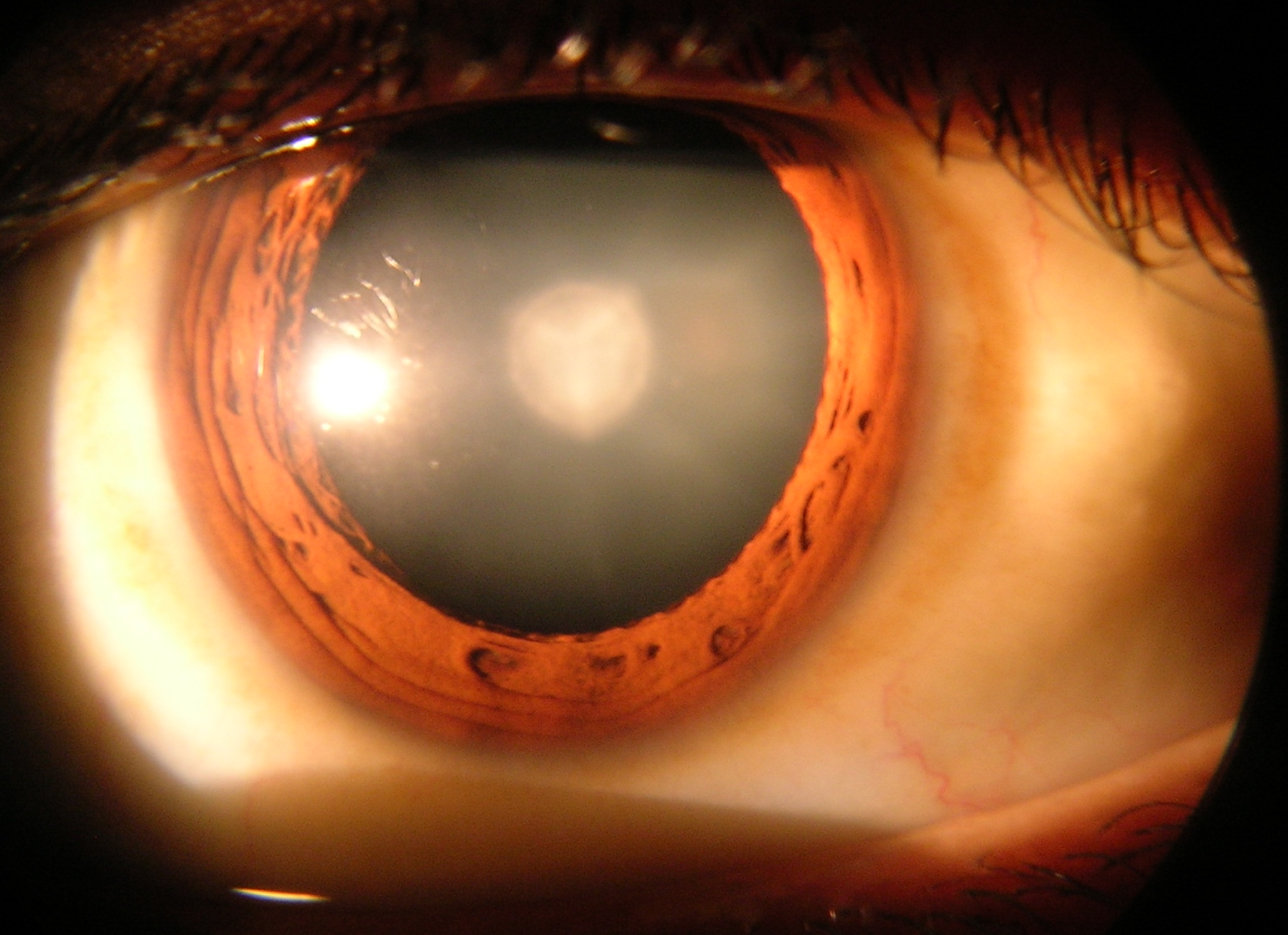 CATARACT: CAUSES, SYMPTOMS & TREATMENTS