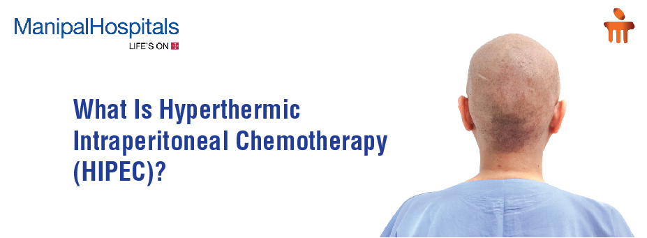 What Is Hyperthermic Intraperitoneal Chemotherapy (HIPEC)?