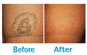 All about TATTOO REMOVAL
