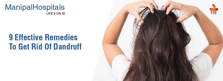 9 Effective Remedies To Get Rid Of Dandruff