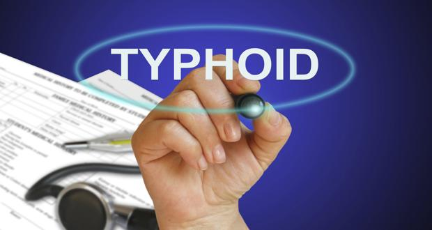 Diagnosis, Treatment and Prevention of Typhoid