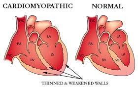 Complications of CARDIOMYOPATHY -diseases of the heart muscle