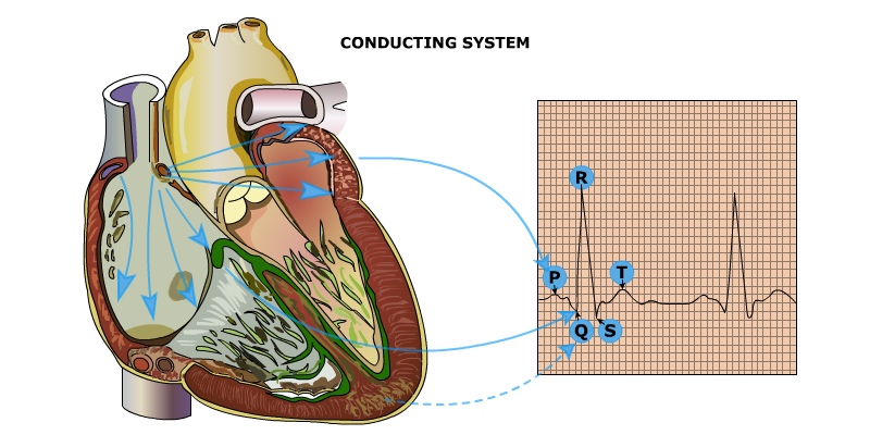 What is ARRHYTHMIA-(problem in either the rate or rhythm of the heart beat )