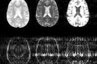New algorithm could substantially speed up MRI scans