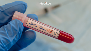 EBOLA: SYMPTOMS, TREATMENT, AND PREVENTION