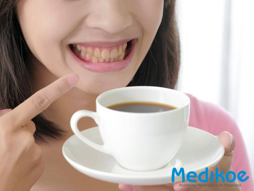All You need to know about what causes Teeth Stain?
