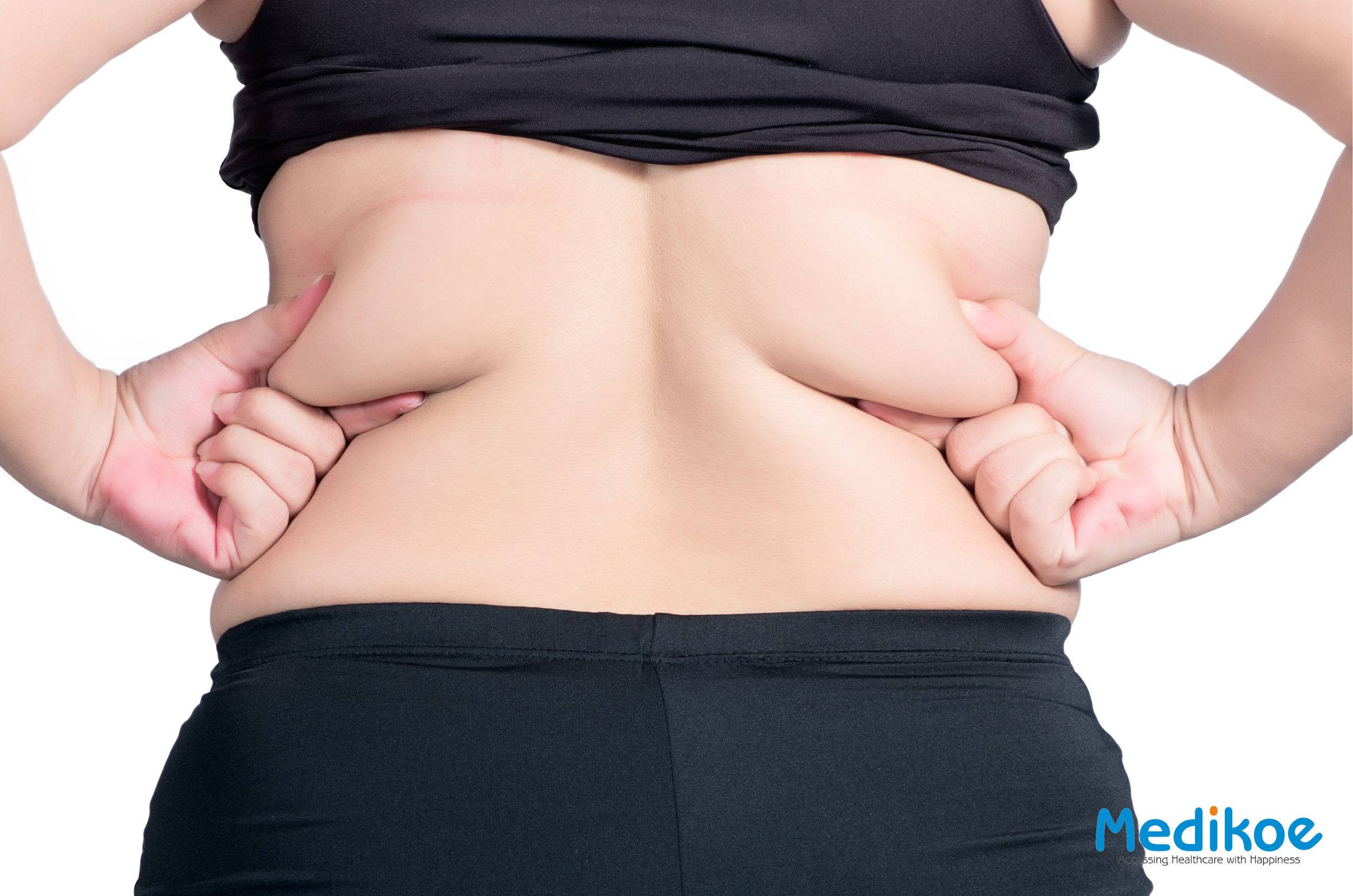 What is a bra line back lift?
