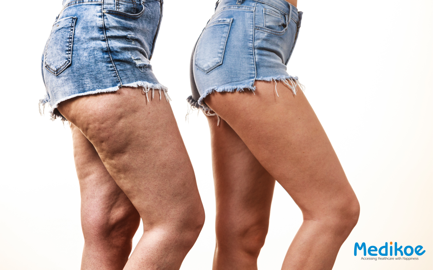 What is an anti-cellulite body wrap?