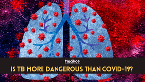 Fact check: Is TB more dangerous than COVID-19?