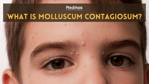 What is Molluscum Contagiosum?