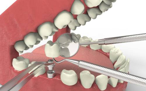 What should you know before having a dental implant surgery?