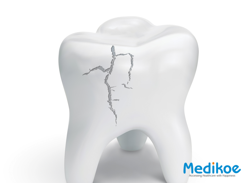 What causes chipped and broken teeth?